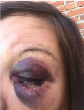 Nurse with a black eye